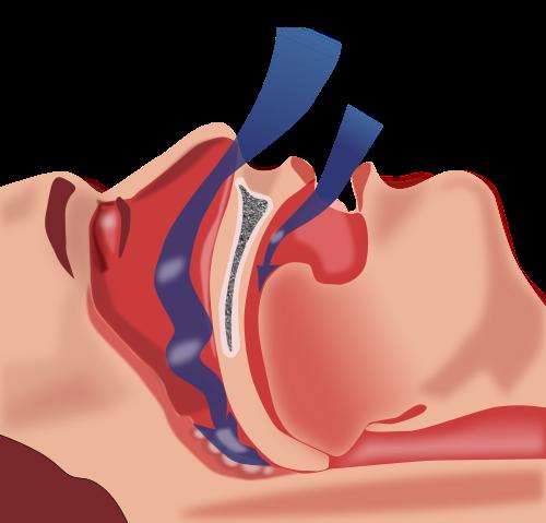 Soluzione alle Apnee notturne nel sonno | Cemial